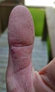 Bass Thumb ...